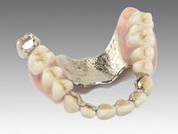 歯科技工物なら何でもお任せください!