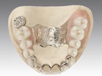 専属の歯科技工士が院内ラボにいる歯科医院